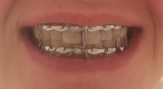 This is what my mouth looked like all wired shut.